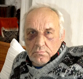 Рятуючи майно, пенсіонер відбивався від грабіжників