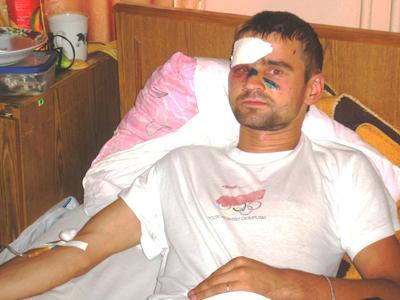 Отставной майор милиции расстрелял из травматического пистолета двоих жителей Довбыша