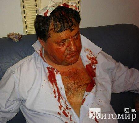 Депутати-регіонали били бютівців і нашоукраїнців кастетами. ФОТО