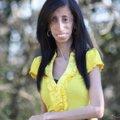 Найхудіша у світі жінка важить лише 26 кг, хоча й їсть кожних 15 хвилин. ВІДЕО