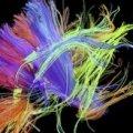 Відкриття вченими хімікату, який запобігає відмиранню мозкової тканини під час нейродегенеративних захворюваннях, стало історичним відкриттям у медичних дослідженнях.