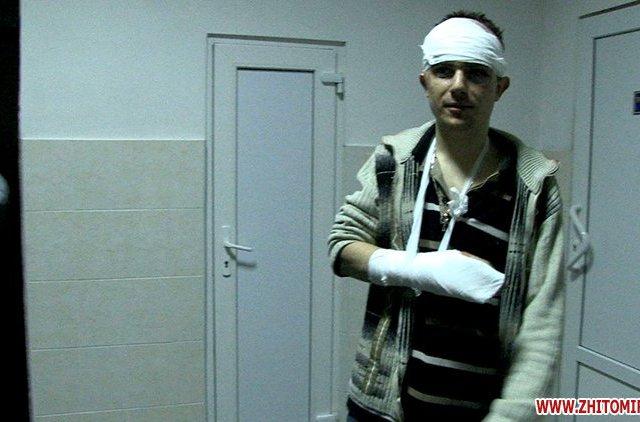 «Не так сидиш». Старший лейтенант міліції у присутності свідків напав на житомирянина. ФОТО . ВІДЕО