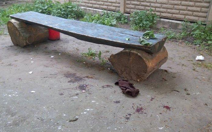 У Житомирі на вулиці Степана Бандери «підрізали» неповнолітнього хлопця