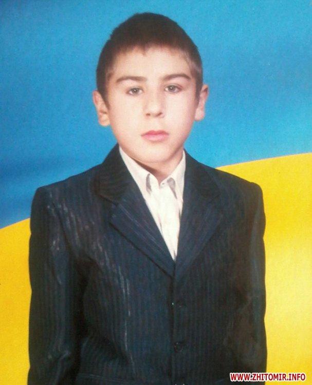 Поліція просить допомогти розшукати 15-річного жителя Житомирської області
