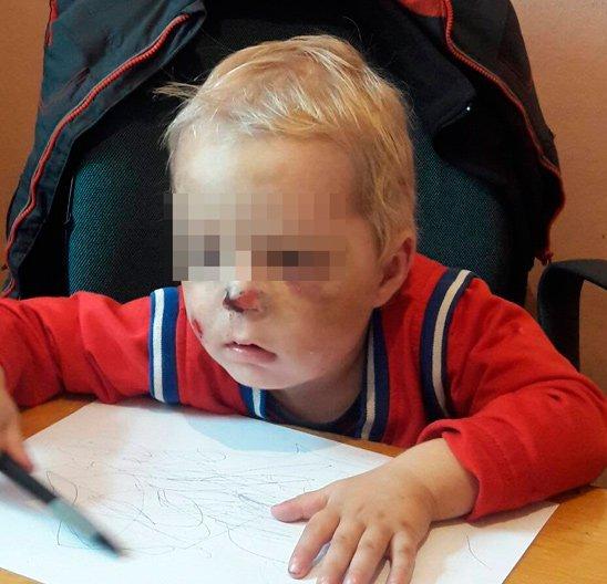 Струс головного мозку, перелом кісток носа та гематоми – у Коростені мати побила 2-річного хлопчика