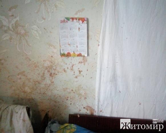 Под Днепром ребенок нашел на свалке пистолет и нечаянно застрелил 2-летнюю сестру.ФОТО