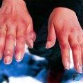 У Коростенському районі 35-річний чоловік обморозив ноги