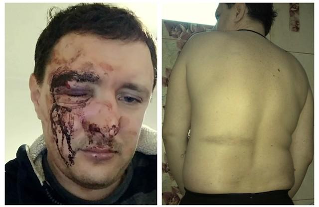 У Житомирі патрульний жорстоко побив чоловіка. ФОТО