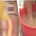 От болей седалищного нерва можно избавиться за 10 минут