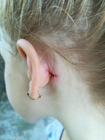 Біля фонтану на Михайлівській горе-велосипедист знову травмував маленьку дівчинку