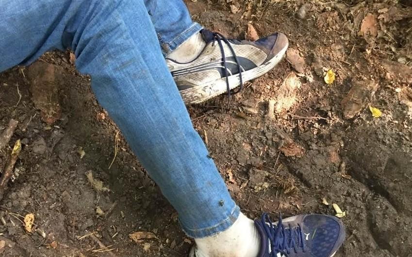 Житомирські поліцейські просять допомогти встановити особу чоловіка, тіло якого знайшли у лісі