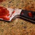 Поліція розслідує замах на вбивство чоловіка на Житомирщині