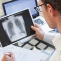 Від туберкульозу гине більше людей, ніж від СНІДу