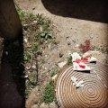 Чоловік розбив голову через небезпечну арматуру у центрі Житомира. ФОТО