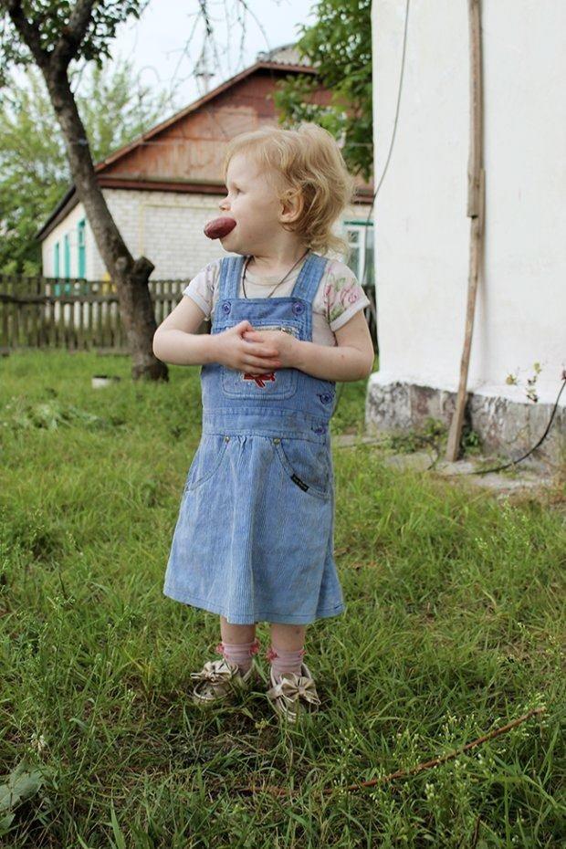 Маленька дівчинка з Малина потребує допомоги: її язик не поміщається в роті