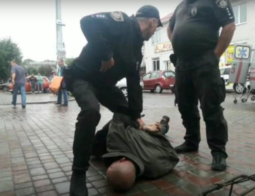 У Коростені озброєний хуліган вдарив ножем чоловіка. ВІДЕО