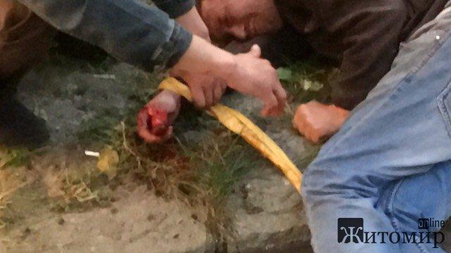 У центрі Житомира один друг відрізав іншому пальця. ФОТО. ВІДЕО
