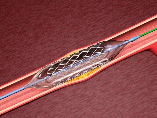 На Житомирщине от инфаркта не умирают