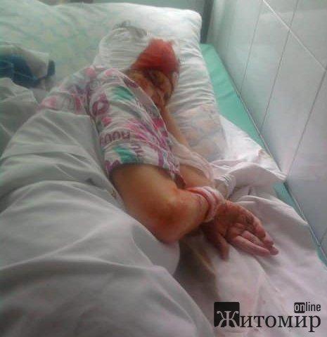 У Житомирській області на голову бабусі впав кусок металу з цементом. ФОТО