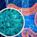 Один летальний випадок вже зафіксували у Житомирі: вирує нова смертельна інфекція – лістеріоз, або «хвороба холодильника»