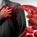 Як визначити наявність тромбу: поради медиків