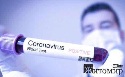 Коронавірус может жить на поверхности до 9 дней, - ученые