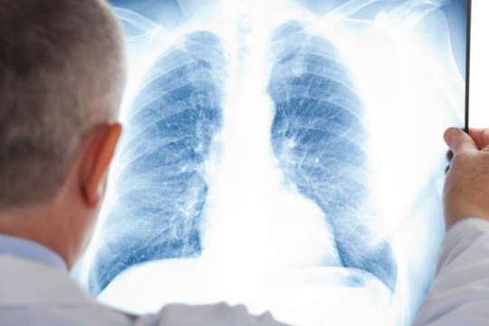 Від пневмонії на Житомирщині за два місяці померли 22 людини