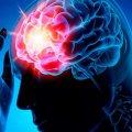 Коронавірус викликає інсульти у здорових людей: лікарі забили на сполох