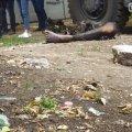 В Одессе обнаружили обгоревшую ногу человека. ФОТО 18+