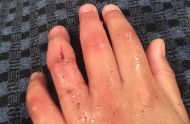 На Житомирщині рятували 4-річного хлопчика, який надів на палець металеву гайку