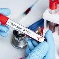У МОЗ розповіли, як закуповуються тести на COVID-19 та хто обирає виробників