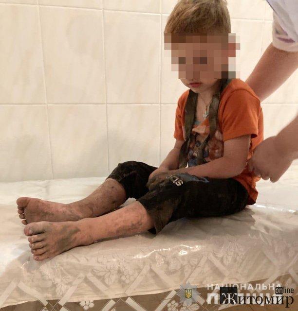 У Житомирській області на березі водойми, де відпочивала родина, зник хлопчик. ФОТО