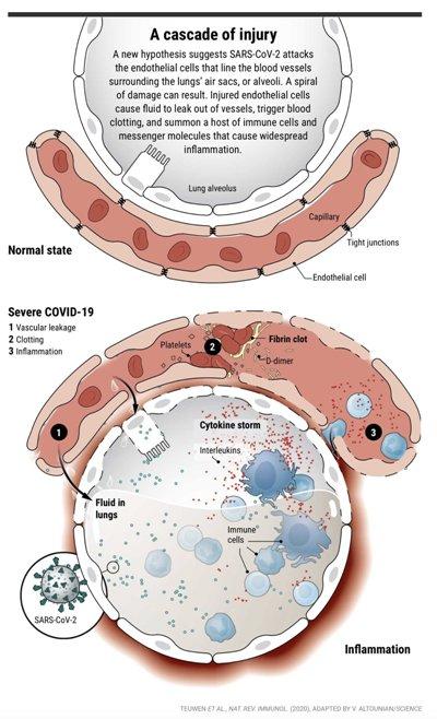 Covid-19 — насамперед судинна, а не респіраторна хвороба: нові підтвердження з Нью-Йорка.