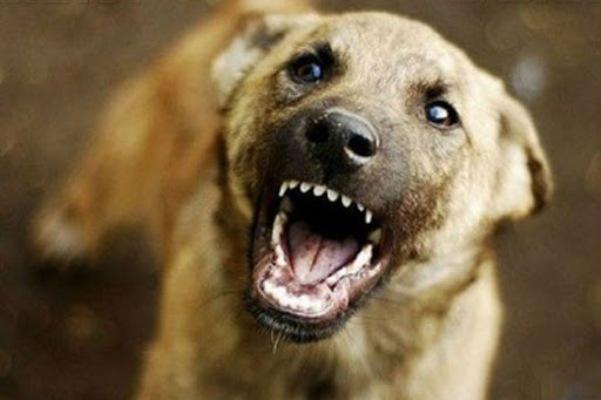 Тільки що на вулиці Довженка у Житомирі агресивний пес жорстоко покусав житомирянку