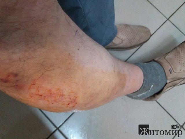 У Житомирі пенсіонер провалився крізь підлогу тролейбуса і травмувався. ФОТО