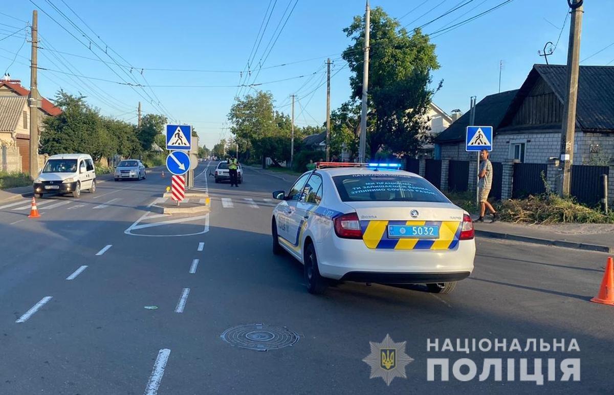 У Житомирі машина збила 11-річного велосипедиста