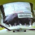 На Житомирщині закривають два відділи заготівлі крові. ВІДЕО