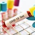 На коронавірус захворіли 7 жителів Новограда-Волинського, серед яких 12-річний хлопчик