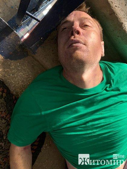 Житомирська поліція просить допомогти впізнати чоловіка, тіло якого знайшли у під'їзді будинку на Великій Бердичівській