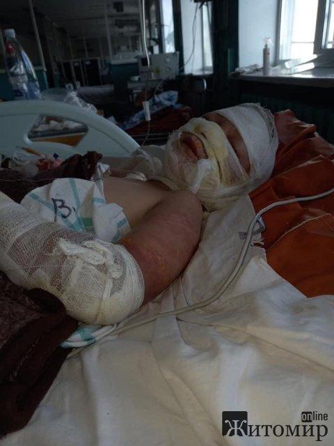Фінансової допомоги потребує 7-річний хлопчик, який травмувався під час гасіння пожежі в Житомирській області. ФОТО