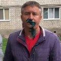 У Житомирі депутату міськради сипнули в обличчя мукою, а потім облили зеленкою