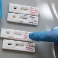 Де у Житомирі можна зробити тест на коронавірус