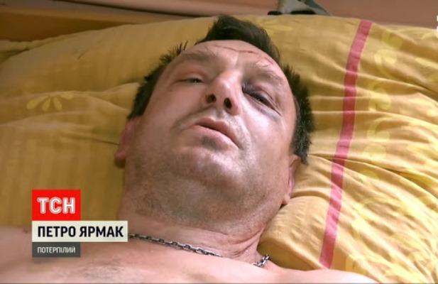 """Покалічений житомирянин Петро Ярмак: """"На Лесі Українки били більше, ніж на Лятошинського"""""""