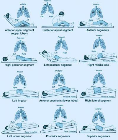 Как справиться с одышкой и кашлем при COVID-19: советы врача
