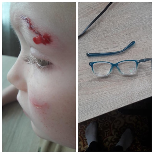 У Коростишеві через халатність мера та непосипані дороги дитина об лід розбила собі лоб і окуляри