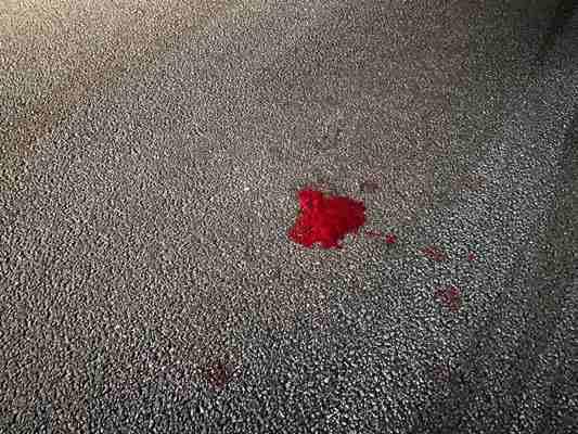 Під Тетерівкою збили людину. ФОТО