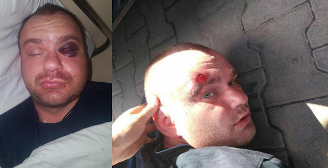 Побиття Капелюхи на заправці під Житомиром: кривдникам заступника главку