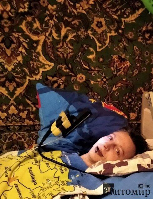 Житомирянин, який прикутий до ліжка, хоче знайти роботу і працювати