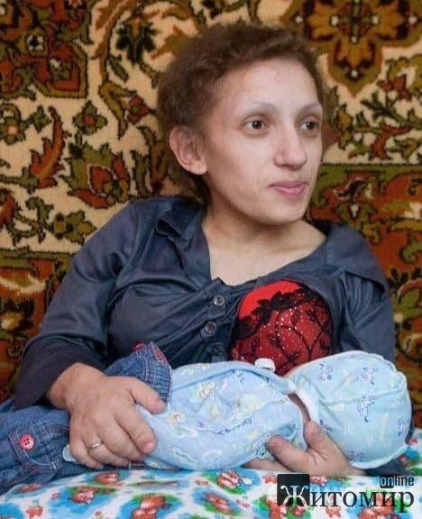 Самая маленькая мама страны: Я осталась одна с дочкой и со страшным диагнозом. ФОТО