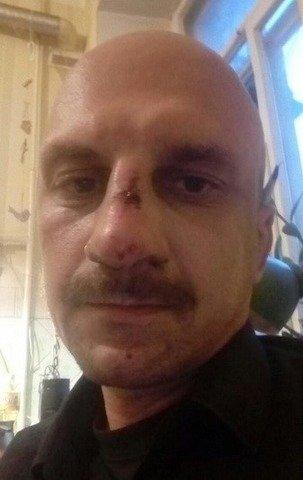 Ексклюзивний коментар житомирянина, якого у Києві побила поліція, підкинувши наркотики. ФОТО
